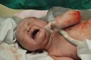 מה עדיף, לידה טבעית, אפידורל או ניתוח קיסרי?